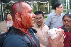 Amran was bleeding after brutally injured by police, 28th May 2006